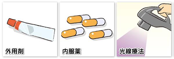 汗疱(異汗性湿疹)の治療